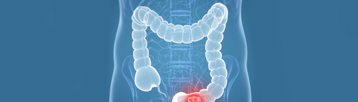 Colorectal Cancer: 6 Things You Must Understand About It